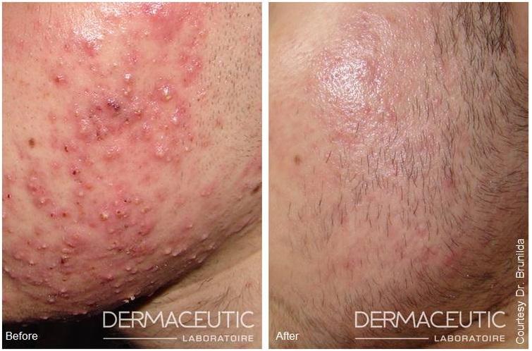 acne peeling behandeling